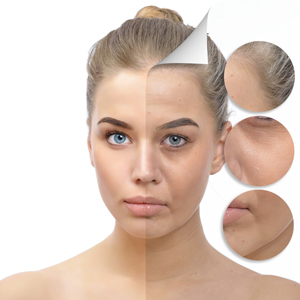 Anti-aging wrinkles treatments types and causes