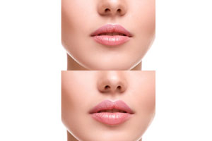 Lips rejuvenation treatment with fillers