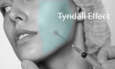 Tyndall effect treatment with Hyaluronidase
