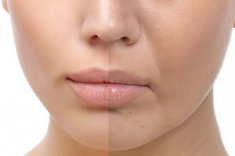 Perioral Area Treatment (Wrinkles and Lines Around the Mouth)